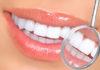 strazni zubi
