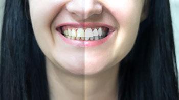 zuti zubi